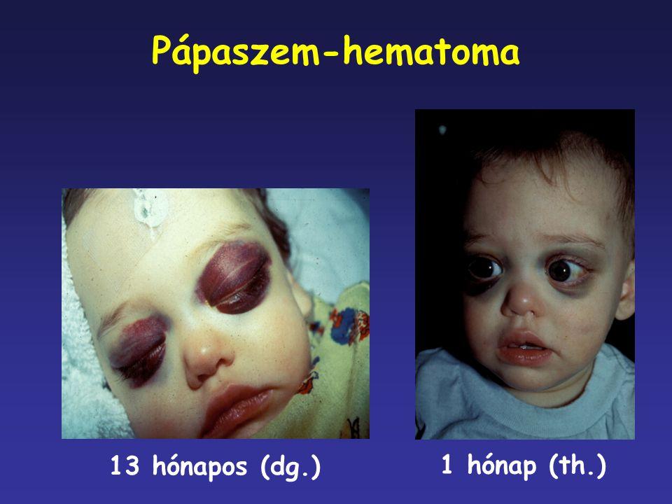 Pápaszem-hematoma 13 hónapos (dg.) 1 hónap (th.)
