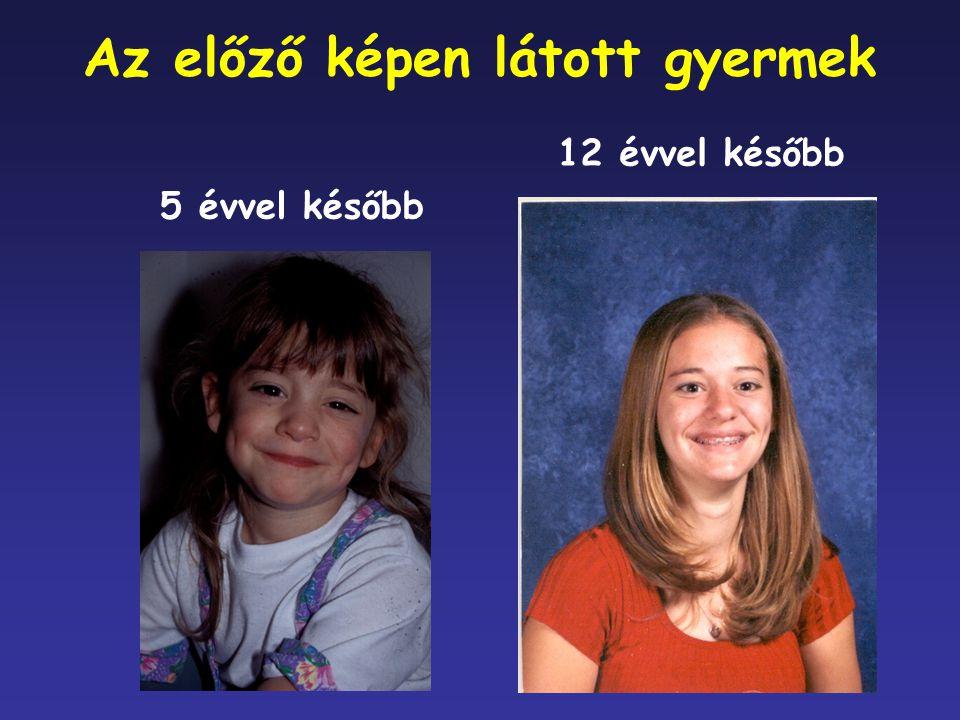 Az előző képen látott gyermek 5 évvel később 12 évvel később