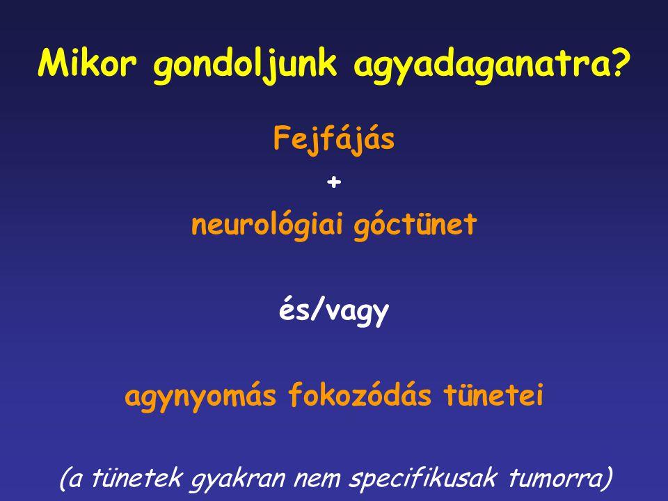 Mikor gondoljunk agyadaganatra? Fejfájás + neurológiai góctünet és/vagy agynyomás fokozódás tünetei (a tünetek gyakran nem specifikusak tumorra)