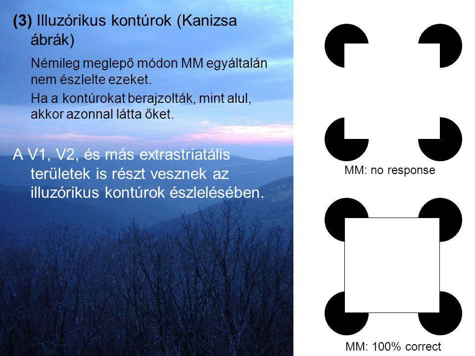 (3) Illuzórikus kontúrok (Kanizsa ábrák) Némileg meglepő módon MM egyáltalán nem észlelte ezeket. Ha a kontúrokat berajzolták, mint alul, akkor azonna