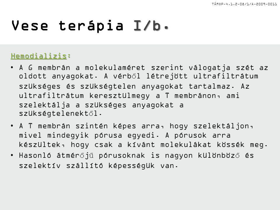TÁMOP-4.1.2-08/1/A-2009-0011 I/a. Vese terápia I/a.