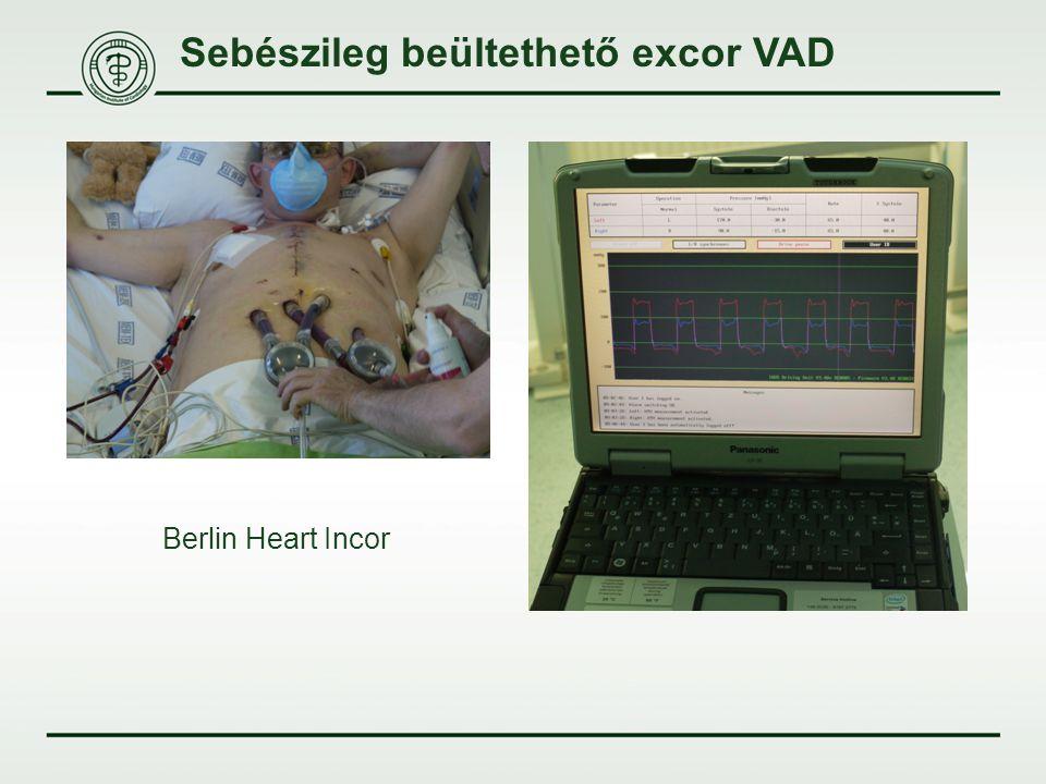 Sebészileg beültethető excor VAD Berlin Heart Incor