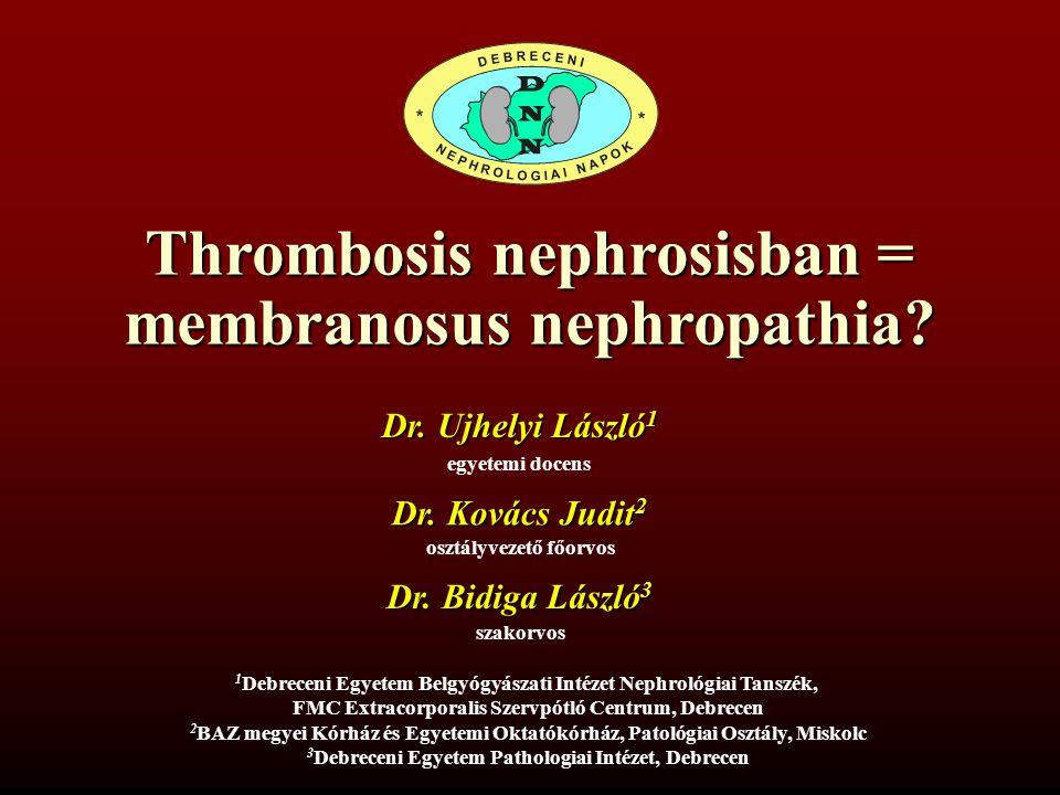 Thrombosis nephrosisban = membranosus nephropathia.