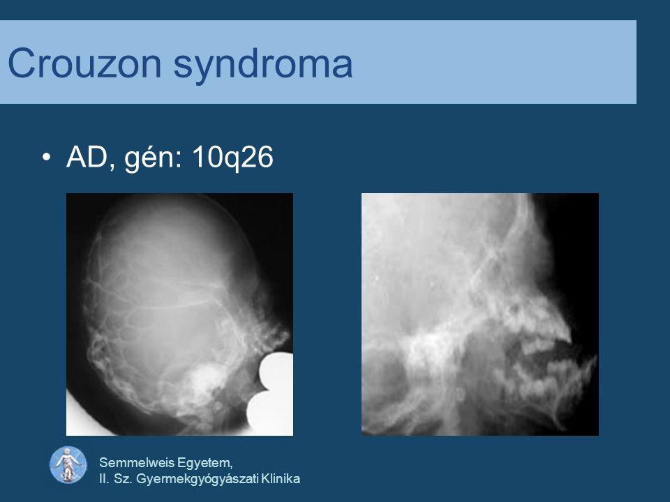 Semmelweis Egyetem, II. Sz. Gyermekgyógyászati Klinika Crouzon syndroma AD, gén: 10q26