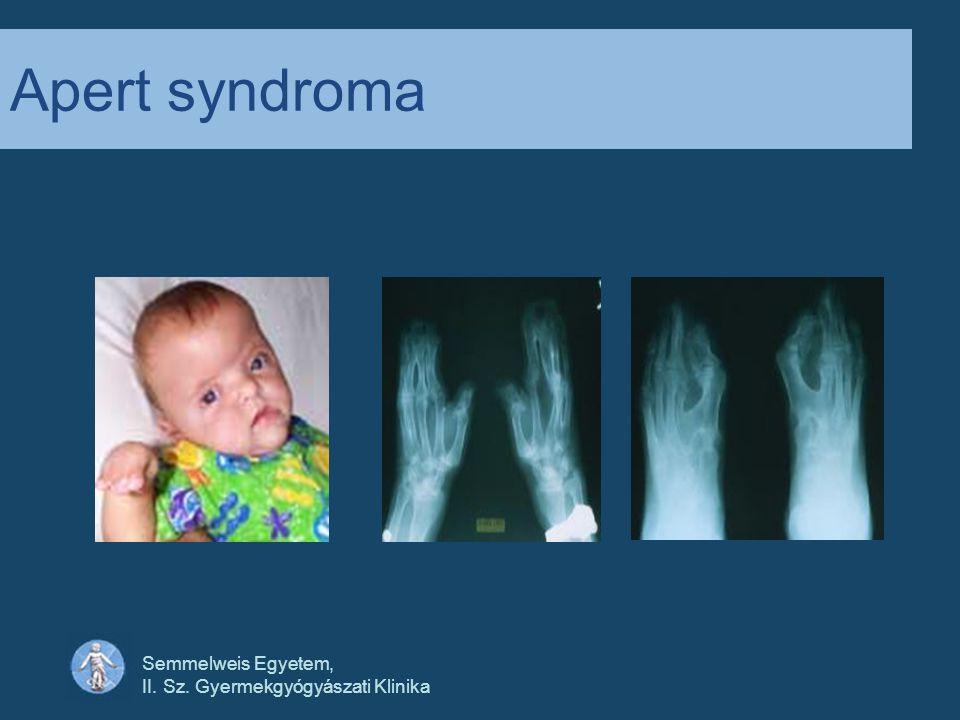 Semmelweis Egyetem, II. Sz. Gyermekgyógyászati Klinika Apert syndroma