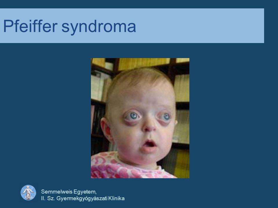 Semmelweis Egyetem, II. Sz. Gyermekgyógyászati Klinika Pfeiffer syndroma
