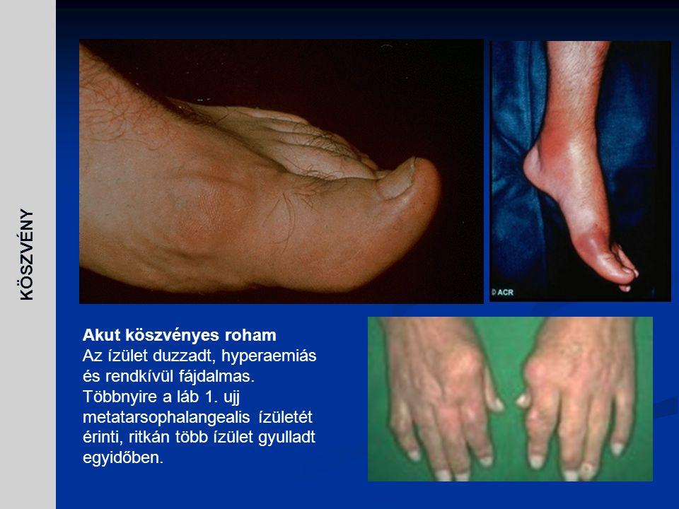 Akut köszvényes roham Az ízület duzzadt, hyperaemiás és rendkívül fájdalmas. Többnyire a láb 1. ujj metatarsophalangealis ízületét érinti, ritkán több