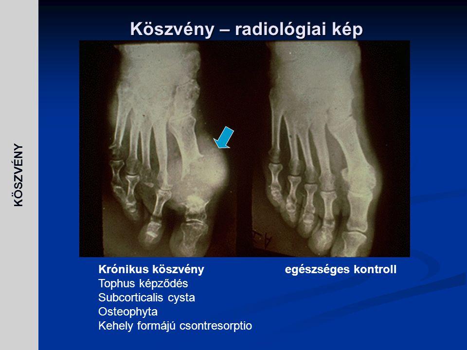 KÖSZVÉNY Köszvény – radiológiai kép Krónikus köszvényegészséges kontroll Tophus képződés Subcorticalis cysta Osteophyta Kehely formájú csontresorptio
