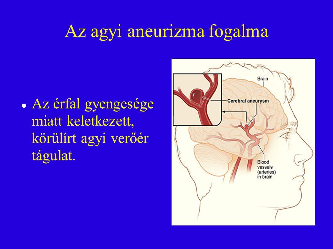 Az agyi aneurizma fogalma Az érfal gyengesége miatt keletkezett, körülírt agyi verőér tágulat.