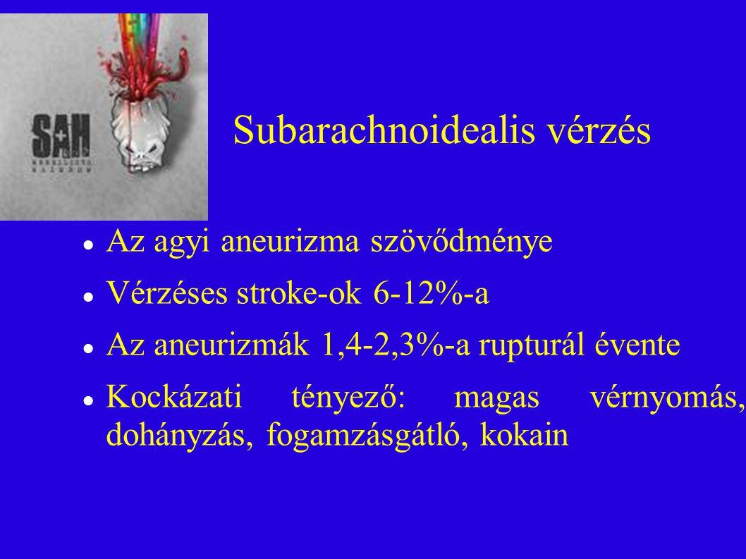 Subarachnoidealis vérzés Az agyi aneurizma szövődménye Vérzéses stroke-ok 6-12%-a Az aneurizmák 1,4-2,3%-a rupturál évente Kockázati tényező: magas vérnyomás, dohányzás, fogamzásgátló, kokain