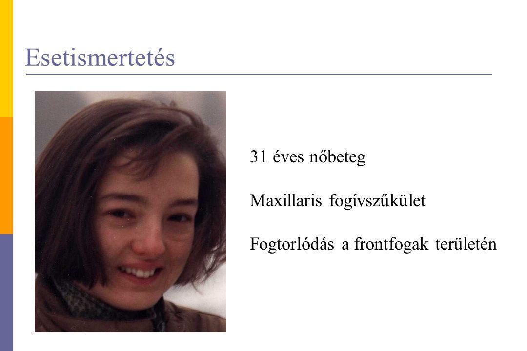 Esetismertetés 31 éves nőbeteg Maxillaris fogívszűkület Fogtorlódás a frontfogak területén