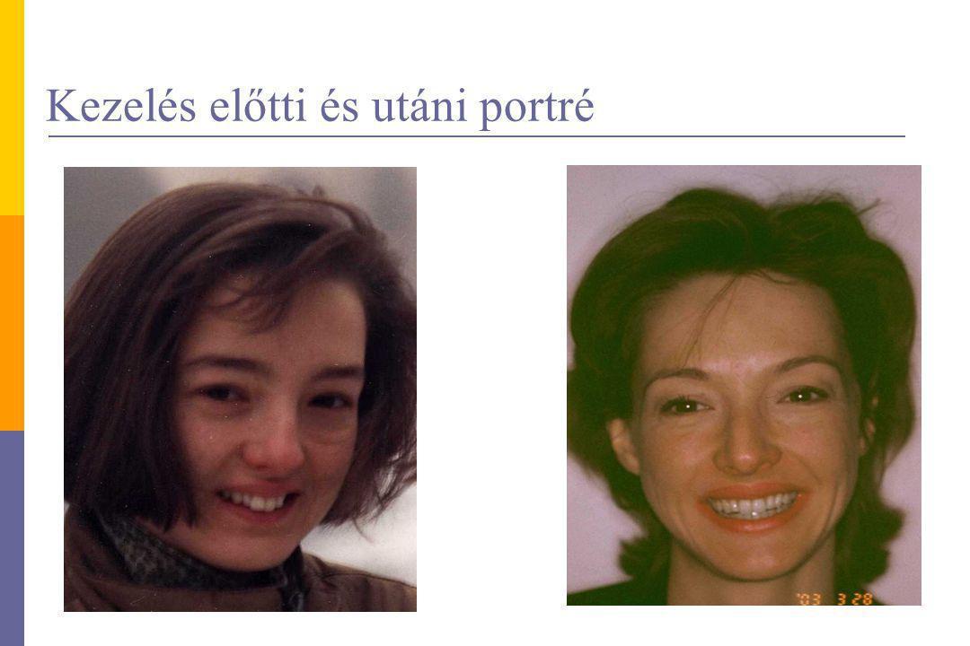 Kezelés előtti és utáni portré