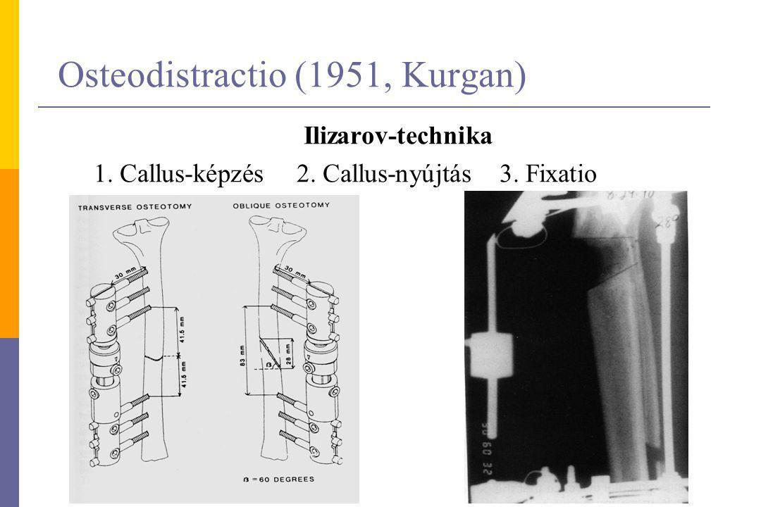 Osteodistractio (1951, Kurgan) Ilizarov-technika 1. Callus-képzés 2. Callus-nyújtás 3. Fixatio
