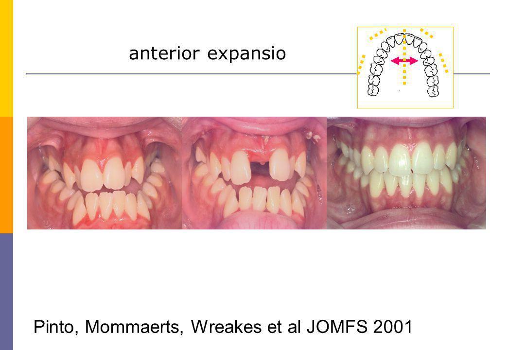 anterior expansio Pinto, Mommaerts, Wreakes et al JOMFS 2001