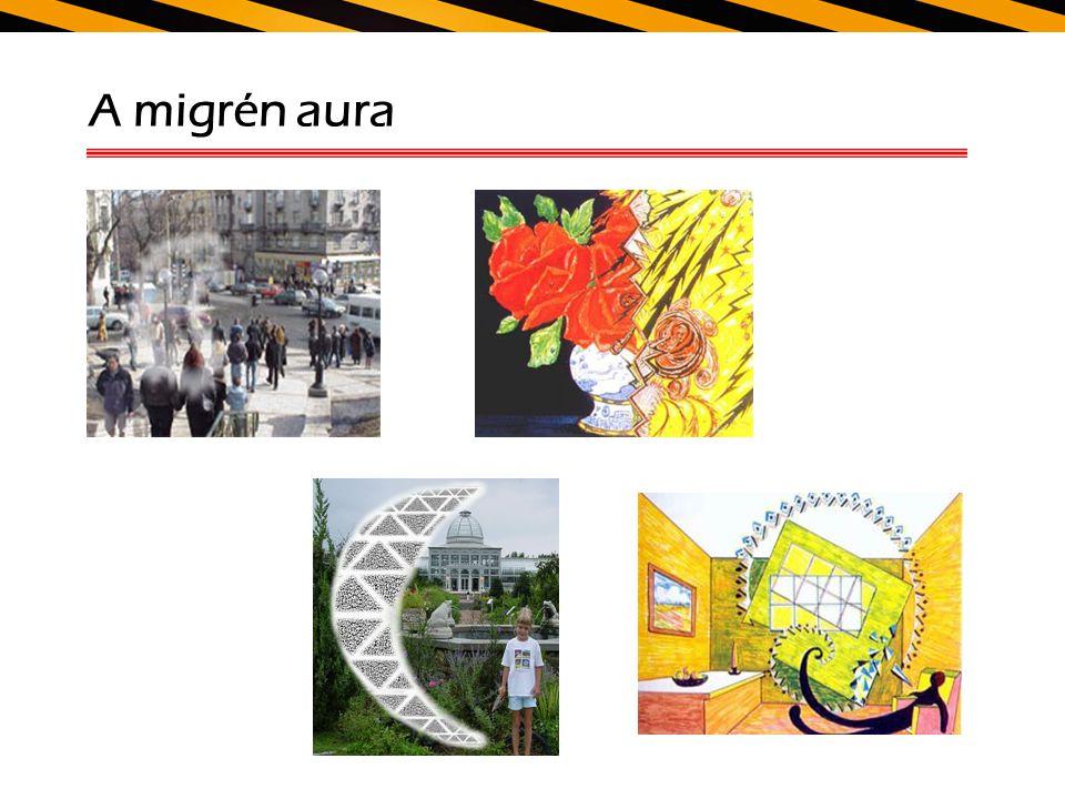 A migrén aura
