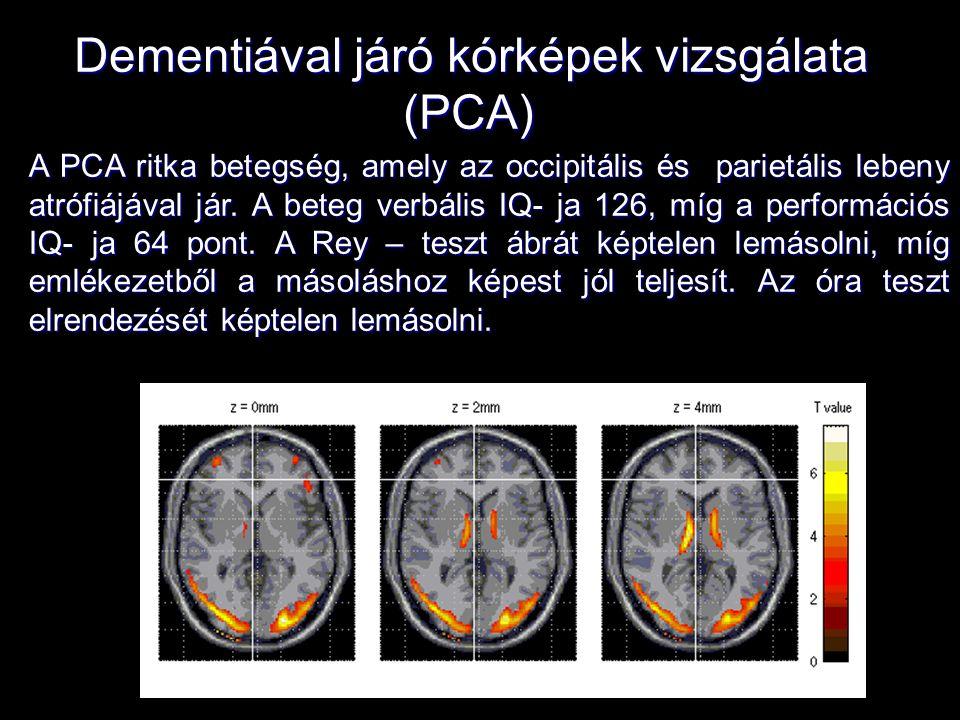 Dementiával járó kórképek vizsgálata (PCA) A PCA ritka betegség, amely az occipitális és parietális lebeny atrófiájával jár. A beteg verbális IQ- ja 1