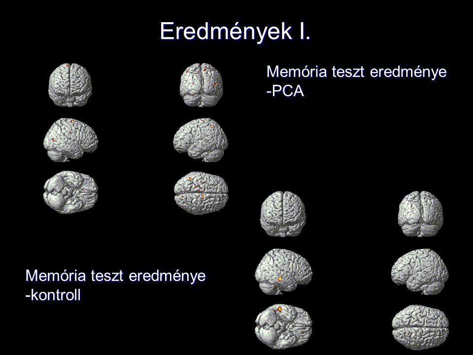 Eredmények I. Memória teszt eredménye -PCA -kontroll