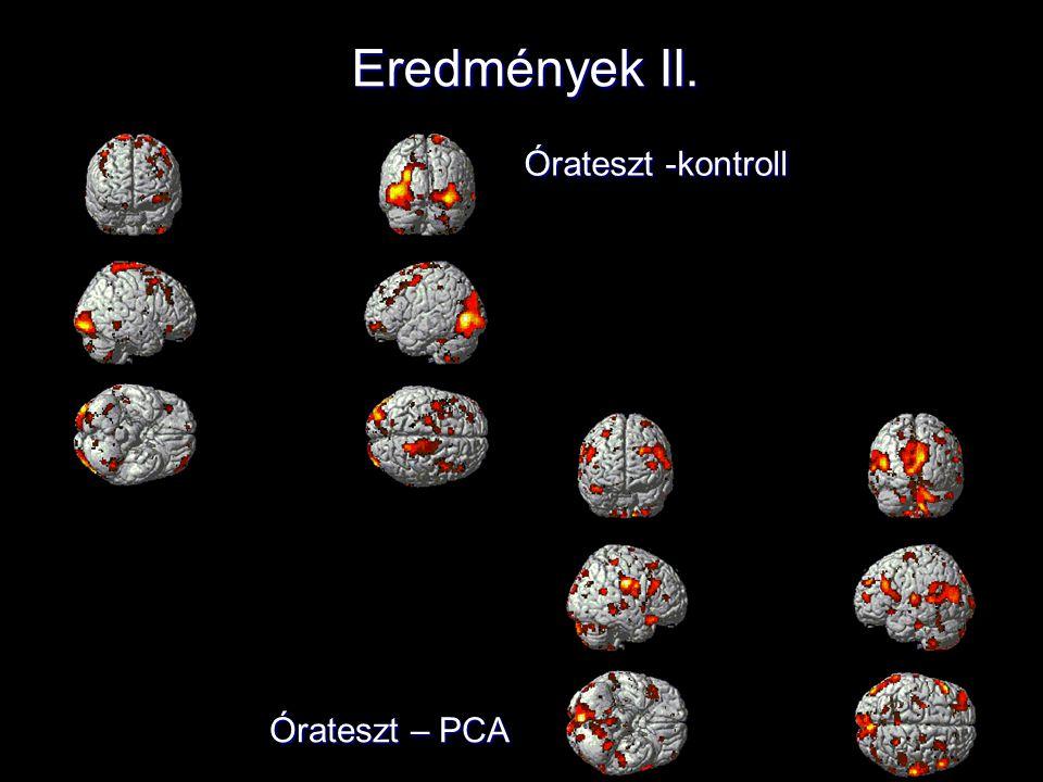 Poszthipnotikus szuggesztió vizsgálata Vizsgálat célja: Gátolható-e a kognitív teljesítmény és ha igen, akkor hogyan, a poszthipnotikus szuggesztió segítségével.