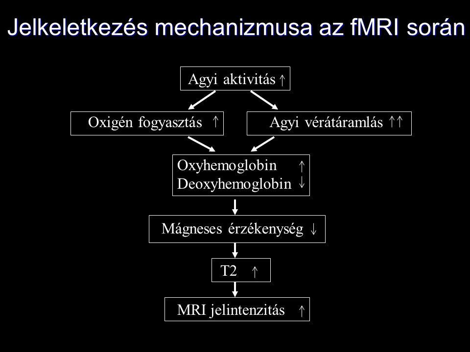Agyi aktivitás Oxigén fogyasztásAgyi vérátáramlás Oxyhemoglobin Deoxyhemoglobin Mágneses érzékenység T2 MRI jelintenzitás Jelkeletkezés mechanizmusa a