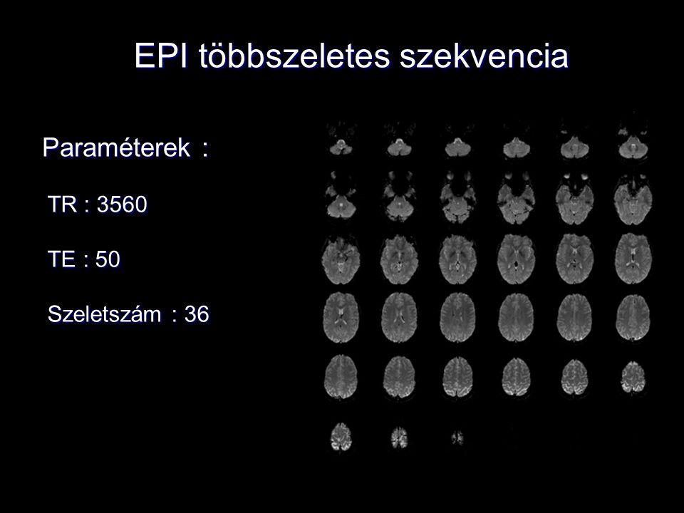 EPI többszeletes szekvencia Paraméterek : TR : 3560 TE : 50 Szeletszám : 36