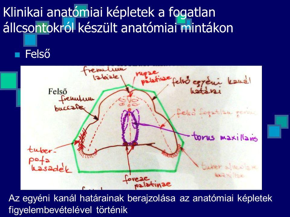 Klinikai anatómiai képletek a fogatlan állcsontokról készült anatómiai mintákon Felső Az egyéni kanál határainak berajzolása az anatómiai képletek fig