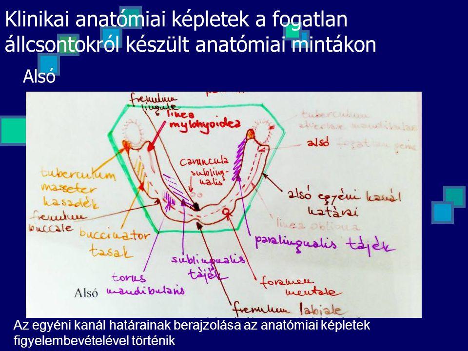 Alsó Az egyéni kanál határainak berajzolása az anatómiai képletek figyelembevételével történik Klinikai anatómiai képletek a fogatlan állcsontokról ké