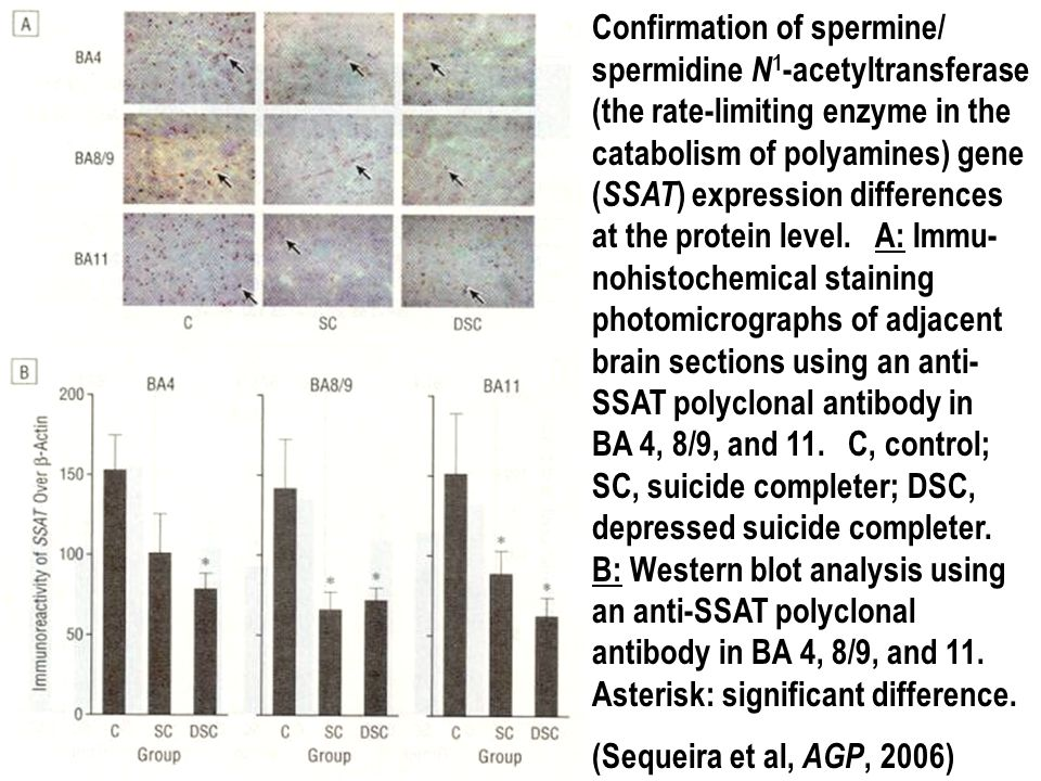 Confirmation of spermine/ spermidine N 1 -acetyltransferase (the rate-limiting enzyme in the catabolism of polyamines) gene ( SSAT ) expression differ
