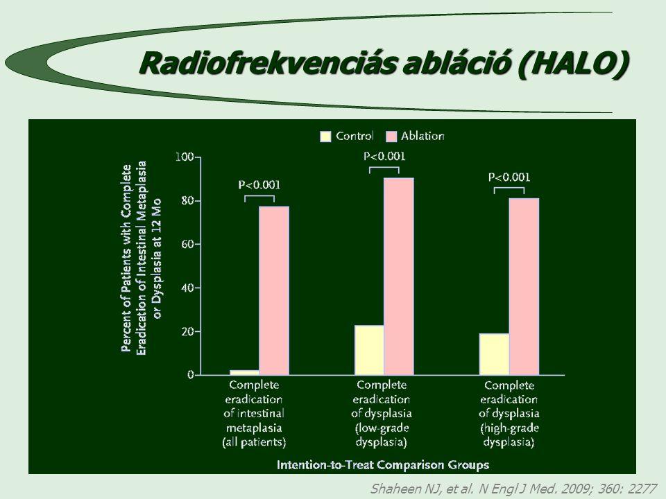 Shaheen NJ, et al. N Engl J Med. 2009; 360: 2277 Radiofrekvenciás abláció (HALO)