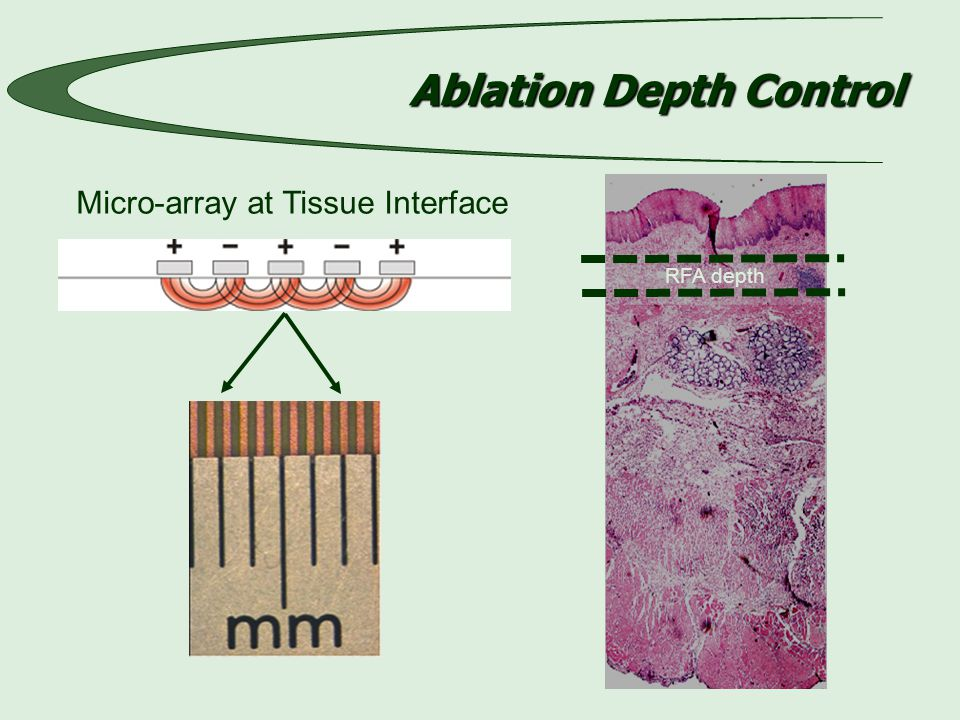 Ablation Depth Control Micro-array at Tissue Interface RFA depth