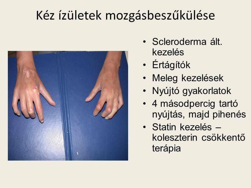 Kéz ízületek mozgásbeszűkülése Scleroderma ált.