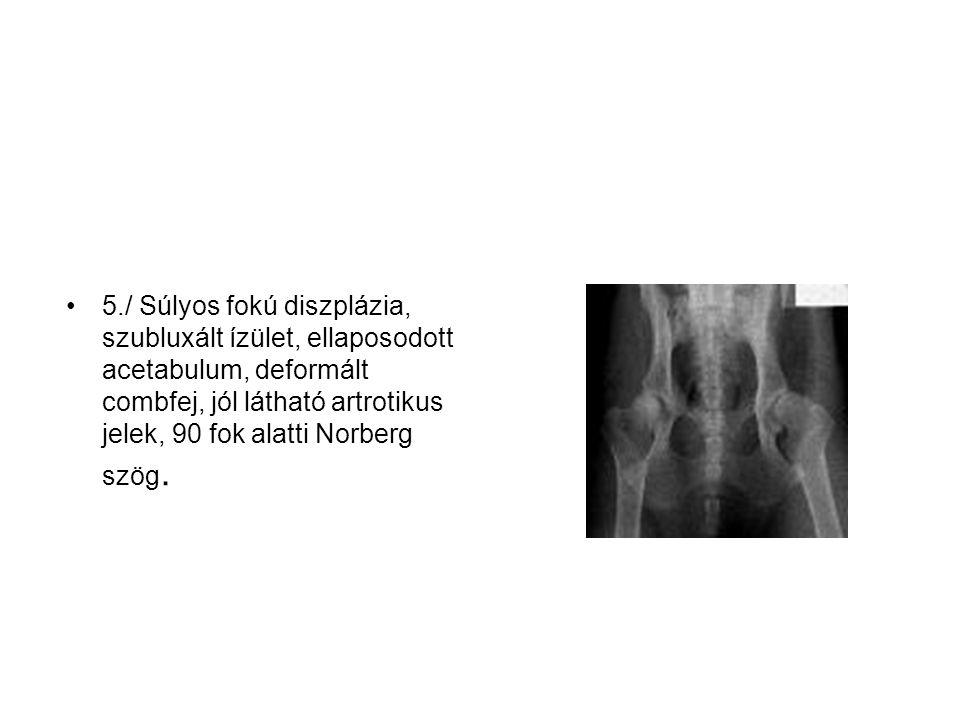 5./ Súlyos fokú diszplázia, szubluxált ízület, ellaposodott acetabulum, deformált combfej, jól látható artrotikus jelek, 90 fok alatti Norberg szög.