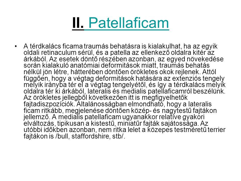 II. Patellaficam A térdkalács ficama traumás behatásra is kialakulhat, ha az egyik oldali retinaculum sérül, és a patella az ellenkező oldalra kitér a