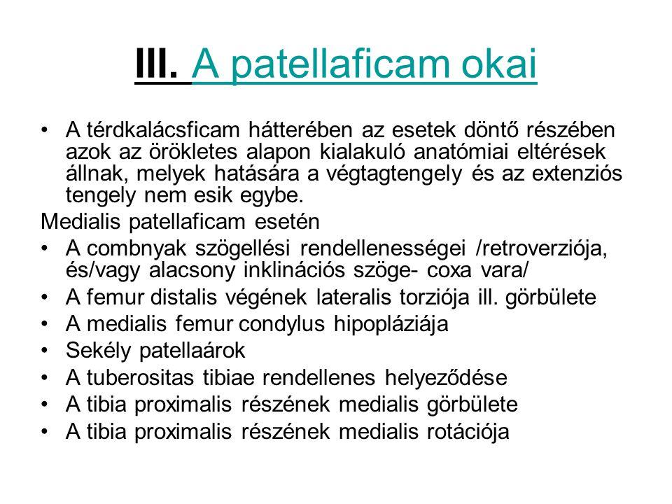 III. A patellaficam okai A térdkalácsficam hátterében az esetek döntő részében azok az örökletes alapon kialakuló anatómiai eltérések állnak, melyek h
