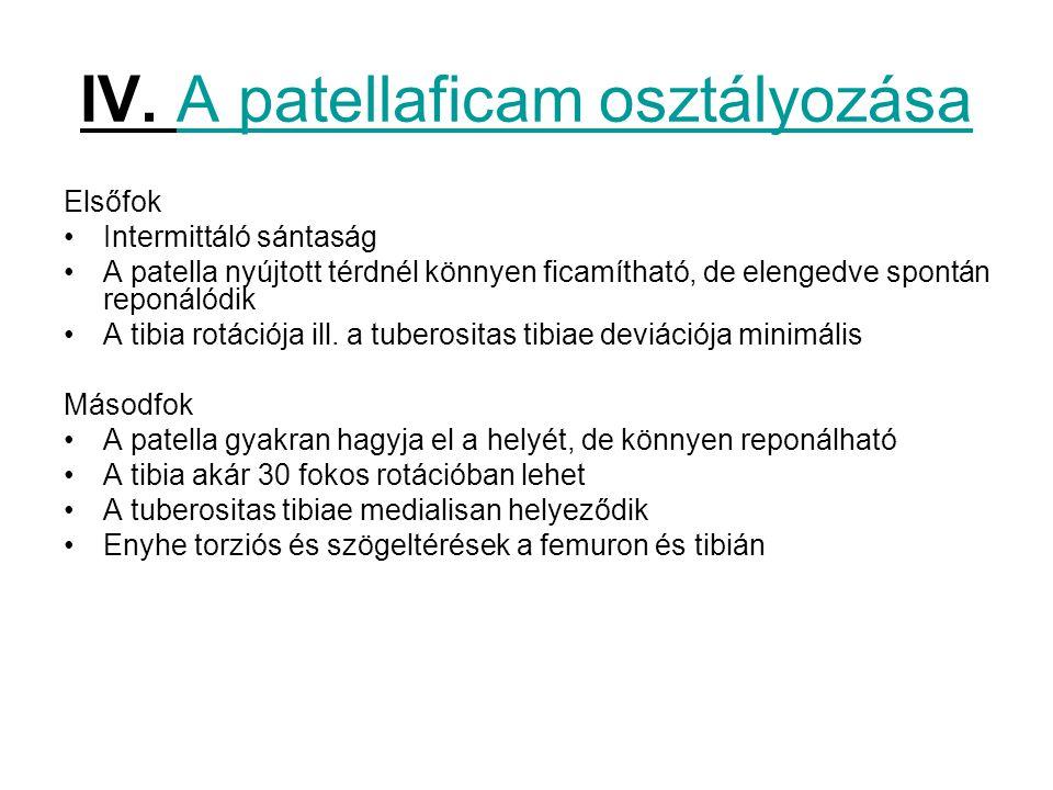 IV. A patellaficam osztályozása Elsőfok Intermittáló sántaság A patella nyújtott térdnél könnyen ficamítható, de elengedve spontán reponálódik A tibia