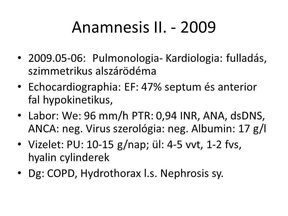 Anamnesis II. - 2009 2009.05-06: Pulmonologia- Kardiologia: fulladás, szimmetrikus alszárödéma Echocardiographia: EF: 47% septum és anterior fal hypok