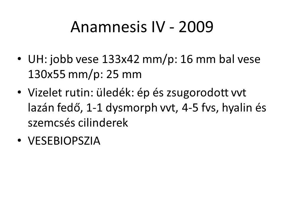 Anamnesis IV - 2009 UH: jobb vese 133x42 mm/p: 16 mm bal vese 130x55 mm/p: 25 mm Vizelet rutin: üledék: ép és zsugorodott vvt lazán fedő, 1-1 dysmorph