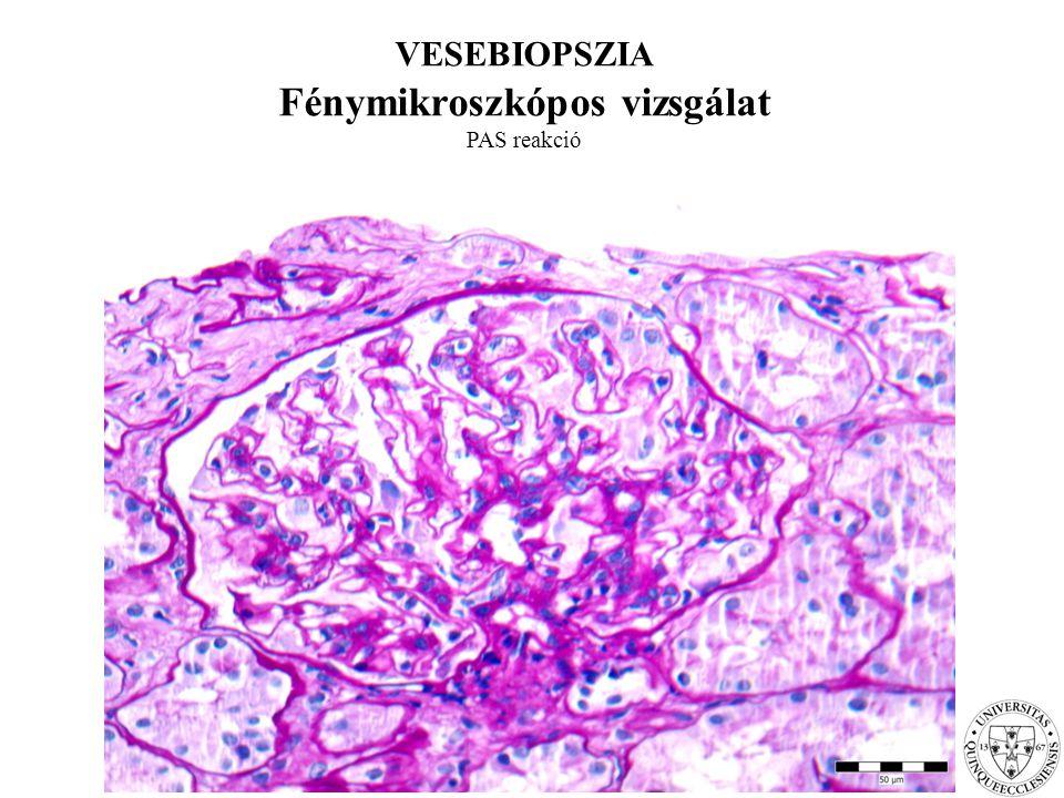 VESEBIOPSZIA Elektronmikroszkópos vizsgálat: membranozus GN stage I.