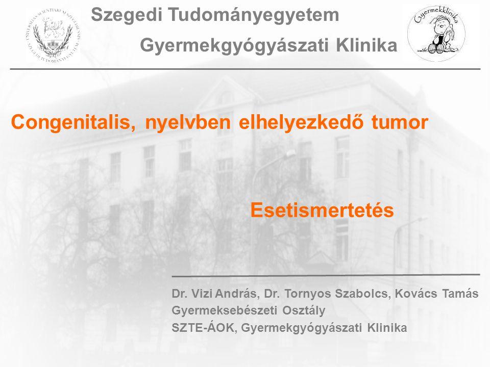 Congenitalis, nyelvben elhelyezkedő tumor Esetismertetés Dr.