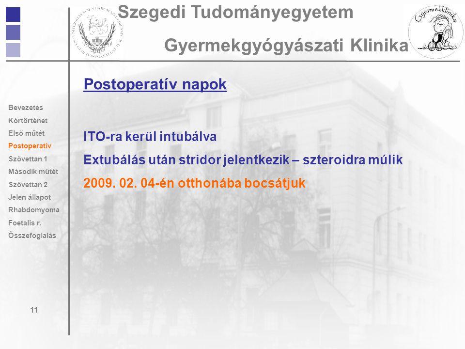 Postoperatív napok ITO-ra kerül intubálva Extubálás után stridor jelentkezik – szteroidra múlik 2009. 02. 04-én otthonába bocsátjuk 11 Szegedi Tudomán