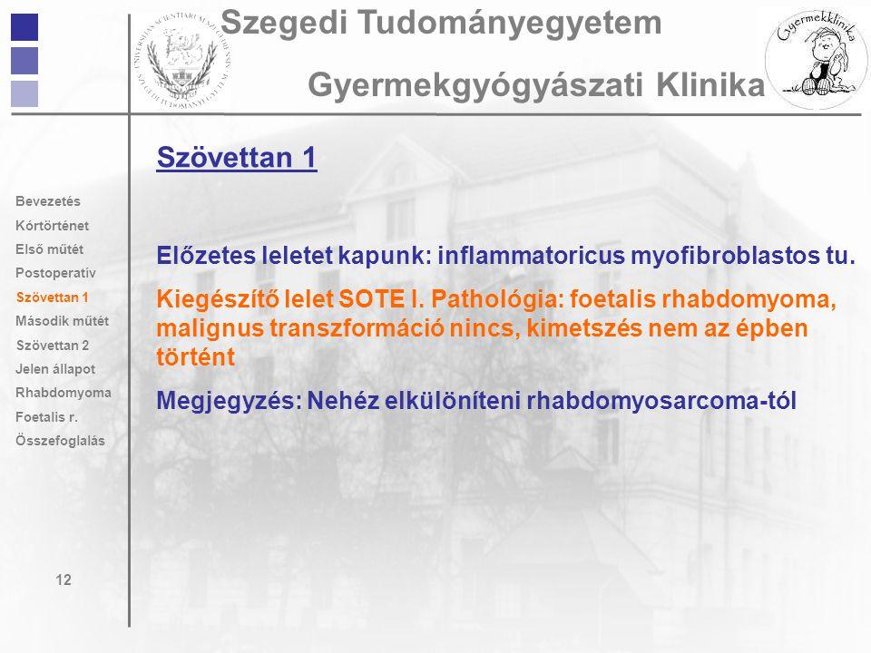 Szövettan 1 Előzetes leletet kapunk: inflammatoricus myofibroblastos tu. Kiegészítő lelet SOTE I. Pathológia: foetalis rhabdomyoma, malignus transzfor