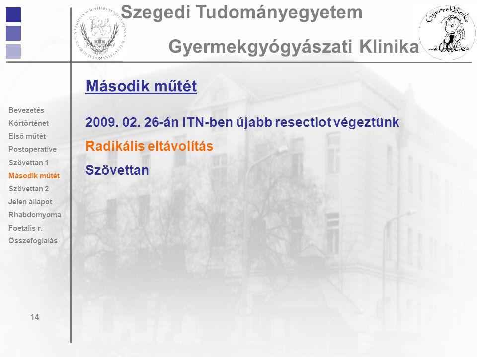 Második műtét 2009. 02. 26-án ITN-ben újabb resectiot végeztünk Radikális eltávolítás Szövettan 14 Szegedi Tudományegyetem Gyermekgyógyászati Klinika