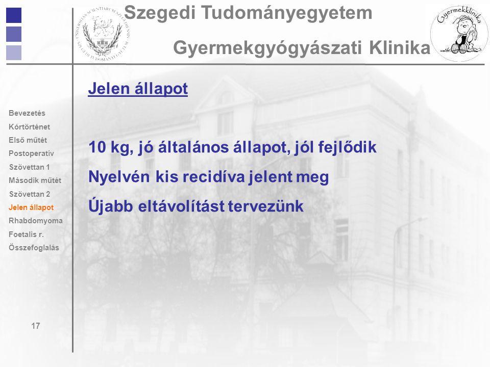 Jelen állapot 10 kg, jó általános állapot, jól fejlődik Nyelvén kis recidíva jelent meg Újabb eltávolítást tervezünk 17 Szegedi Tudományegyetem Gyerme