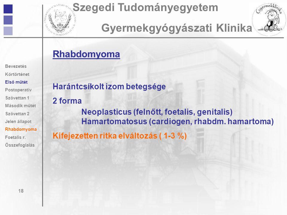 Rhabdomyoma Harántcsíkolt izom betegsége 2 forma Neoplasticus (felnőtt, foetalis, genitalis) Hamartomatosus (cardiogen, rhabdm. hamartoma) Kifejezette