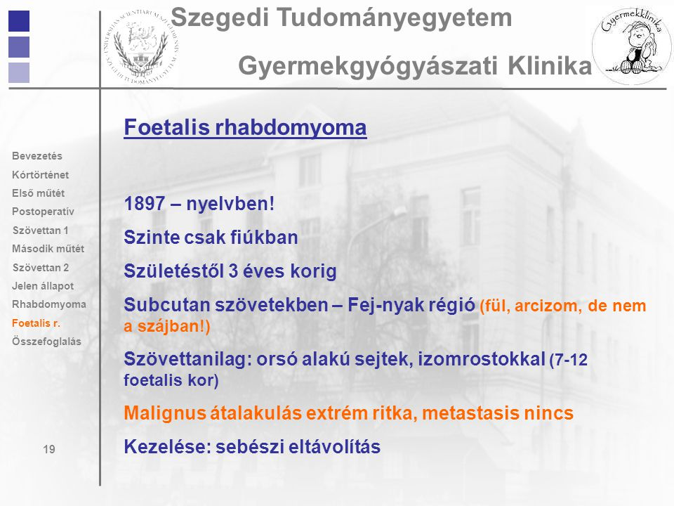 Foetalis rhabdomyoma 1897 – nyelvben! Szinte csak fiúkban Születéstől 3 éves korig Subcutan szövetekben – Fej-nyak régió (fül, arcizom, de nem a szájb