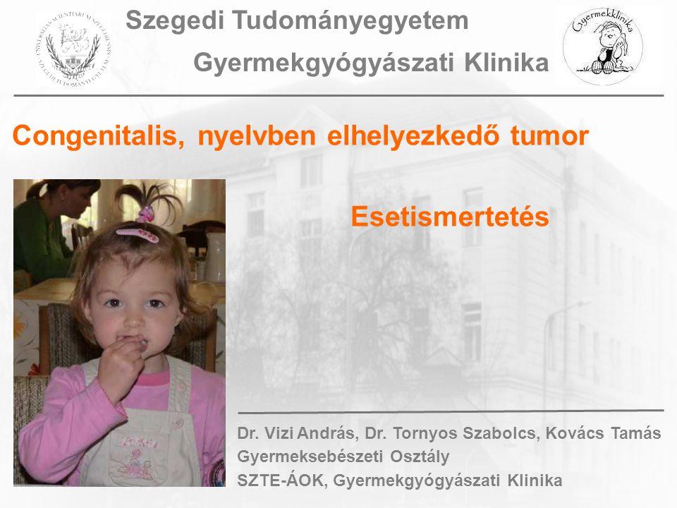 Congenitalis, nyelvben elhelyezkedő tumor Esetismertetés Dr. Vizi András, Dr. Tornyos Szabolcs, Kovács Tamás Gyermeksebészeti Osztály SZTE-ÁOK, Gyerme