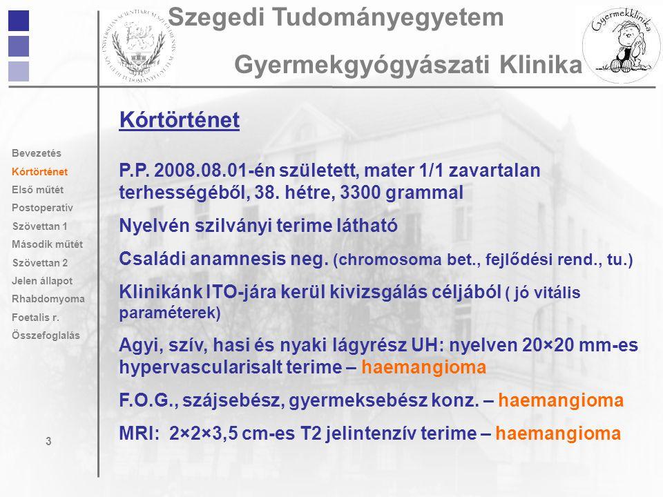 Kórtörténet P.P. 2008.08.01-én született, mater 1/1 zavartalan terhességéből, 38. hétre, 3300 grammal Nyelvén szilványi terime látható Családi anamnes