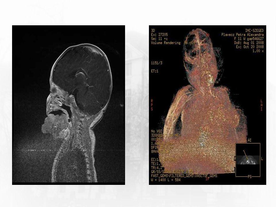 Kórtörténet Műtét mellett döntünk – 5-6 hónapos életkorban Otthonába bocsátjuk (jó vitális paraméterek, táplálható) Jól fejlődik Kontrollokon a tumor nem növekszik 6 Szegedi Tudományegyetem Gyermekgyógyászati Klinika Bevezetés Kórtörténet Első műtét Postoperatív Szövettan 1 Második műtét Szövettan 2 Jelen állapot Rhabdomyoma Foetalis r.