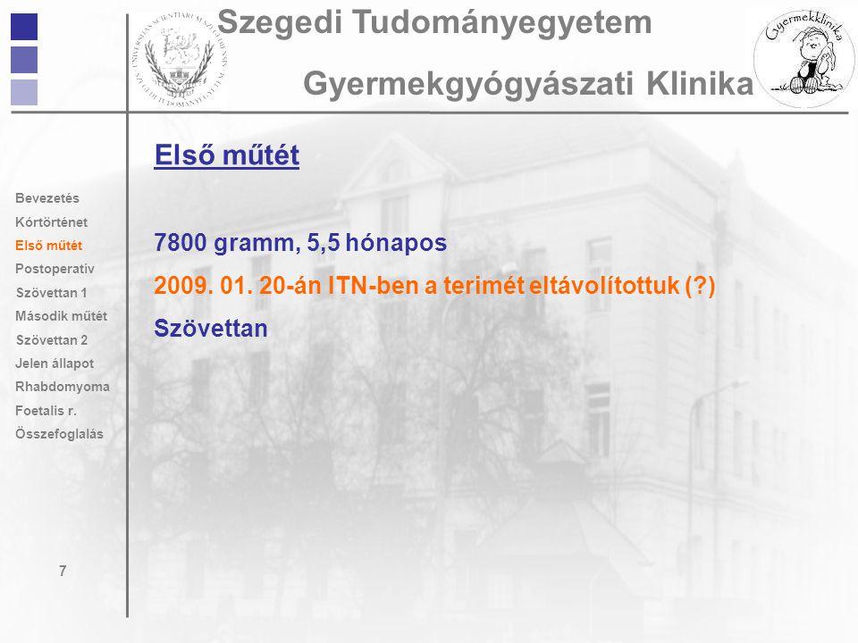 Első műtét 7800 gramm, 5,5 hónapos 2009. 01. 20-án ITN-ben a terimét eltávolítottuk (?) Szövettan 7 Szegedi Tudományegyetem Gyermekgyógyászati Klinika