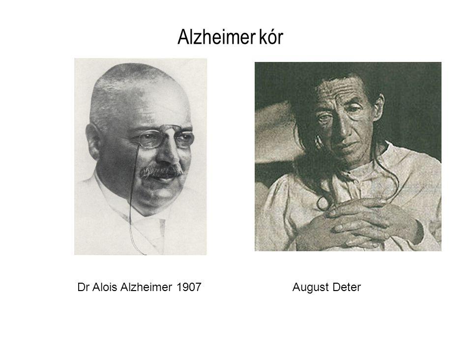 Dr Alois Alzheimer 1907August Deter Alzheimer kór
