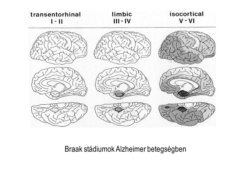 Braak stádiumok Alzheimer betegségben
